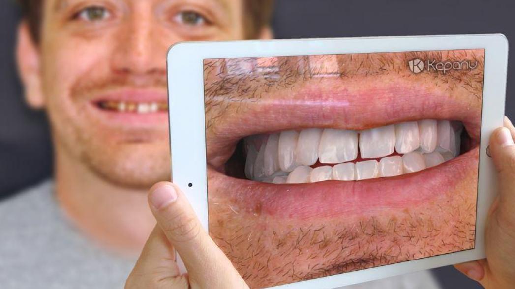 Как использовать дополненную реальность в стоматологии