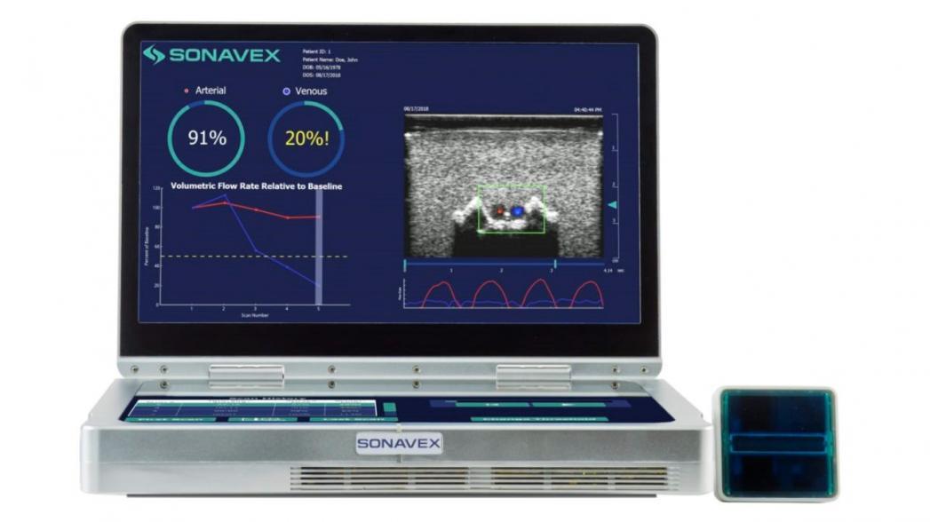 Sonavex EchoSure: ультразвуковой монитор кровотока