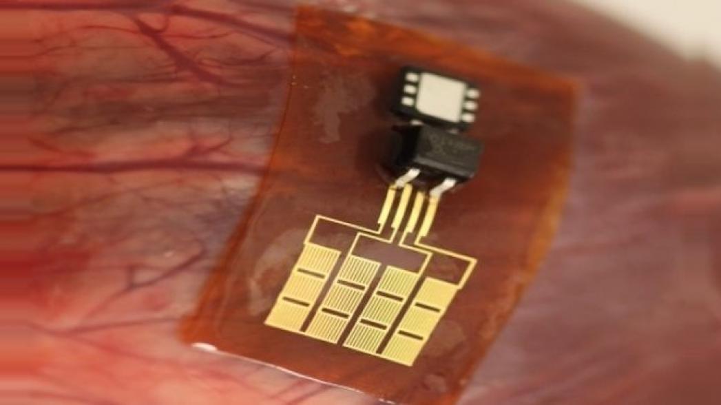 Проглатываемый сенсор для диагностики проблем желудка