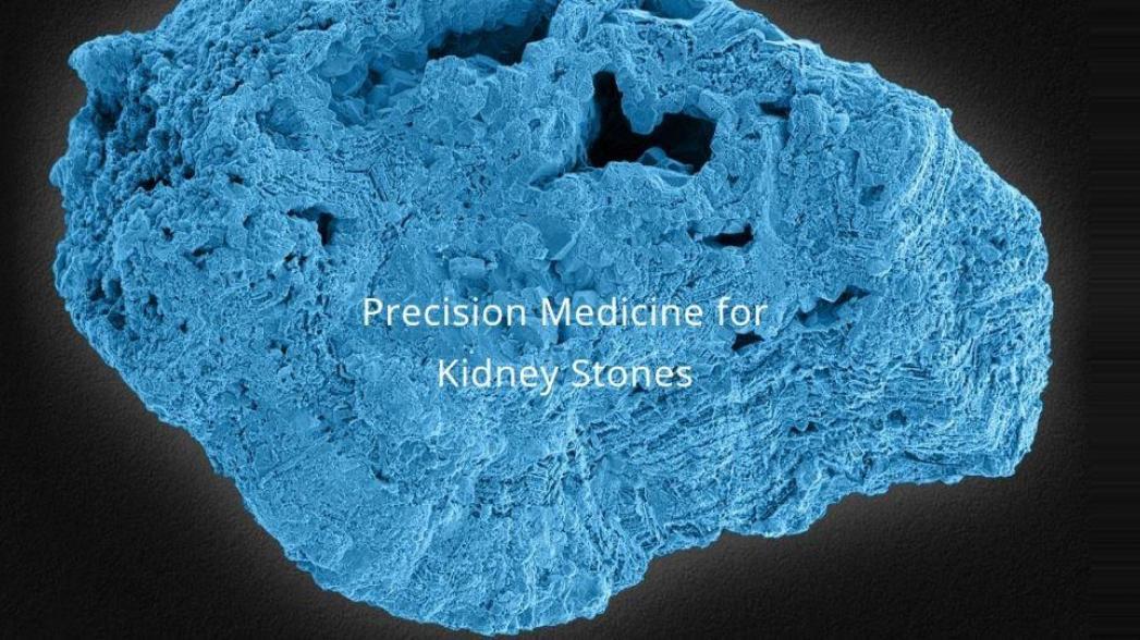 Программа, которая анализирует камни в почках