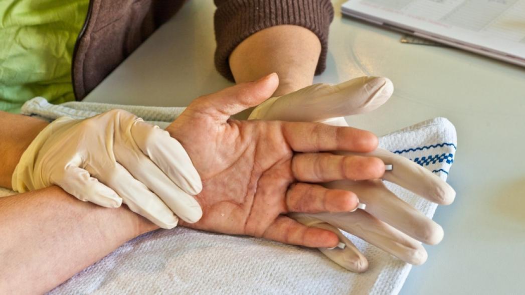 Носимое устройство для восстановления функции руки для людей после инсульта