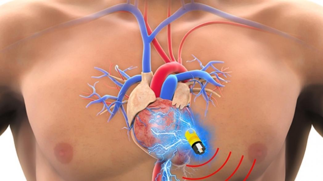 Имплантируемое устройство, которое получает энергию прямо из тела
