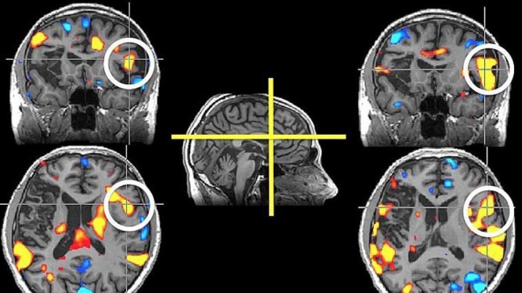 Viz: Система на базе искусственного интеллекта для идентификации инсульта