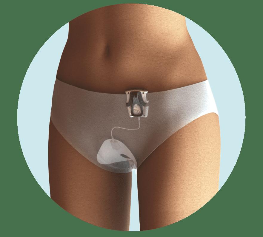 Незаметное устройство для лечения недержания у женщин [1]